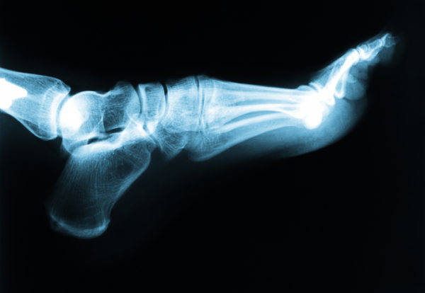 How to Avoid a Workplace Foot Injury